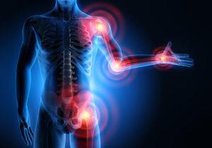 Douleurs articulaires - quelles maladies sont accompagnées?